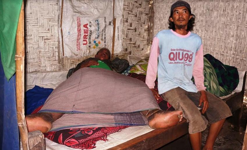 Arofan, pednerita kaki gajah dan testis raksasa terbaring di tempat tidur