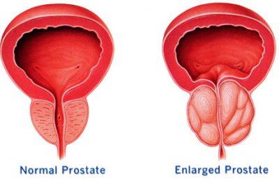 Prostat dalam kondisi normal dan ketika bengkak hebat