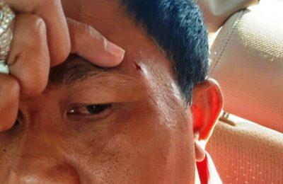 Ketua Fraksi PDIP I Kadek Diana luka di pelipis akibat dipukul rekan separtainya. (Ist)