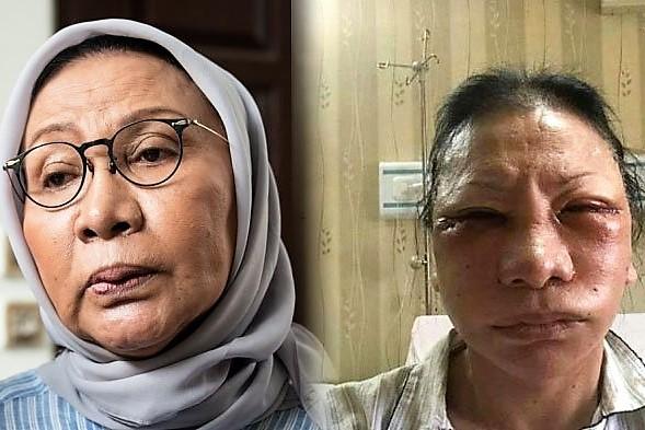 Ratna Sarumpaet berbohong telah dianiya karena malu sudah  empat kali operasi plastik.