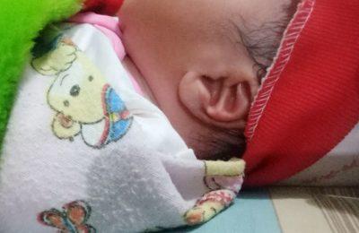 telinga bayi di Situbondo yang mirip dengan lafadz Allah. (foto:fat)